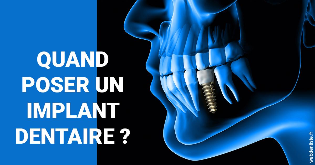 https://dr-pissis-patrick.chirurgiens-dentistes.fr/Les implants 1